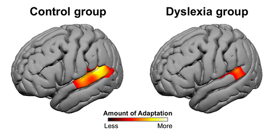 h research dyslexia-adaptation-figure simple